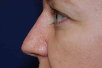 Non-Surgical Rhinoplasty after 513494