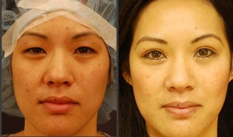 Asian Eyelid Surgery - Double Eyelid Surgery before 564019