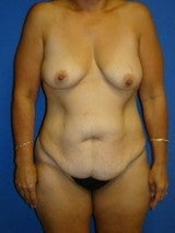 Breast Lift with Implants, Extended Tummy Tuck, before 399479