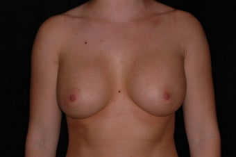 Breast Augmentation after 336380
