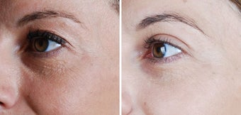 Cosmetic eyelid surgery before 128410
