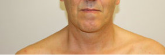 Chin Liposuction  490761