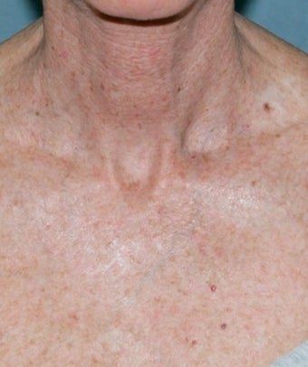 Fractional CO2 Laser Treatment before 374379