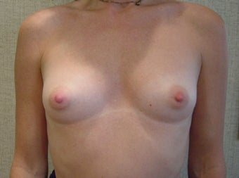Breast Augmentation before 346178