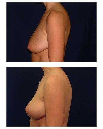 Breast Lift / Mastopexy before 286868