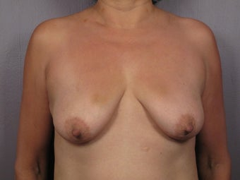 Breast Lift / Breast Augmentation before 291144