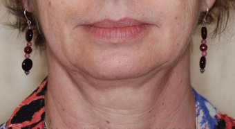 Ultherapy before 460347