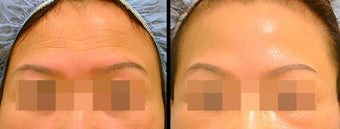 Endoscopic Brow Lift before 649392