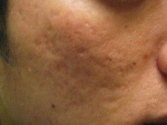 Artefill treatment of Acne Scars before 272001