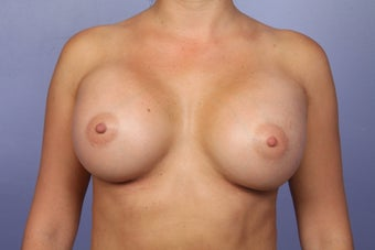Breast Augmentation after 338709