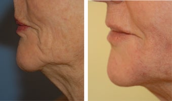 Juvederm before 652179