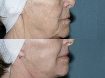 Fraxel repair with C02/Erbium lasers for facial wrinkles before 104647