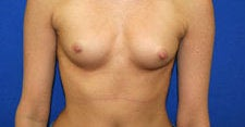 Breast Augmentation before 572343
