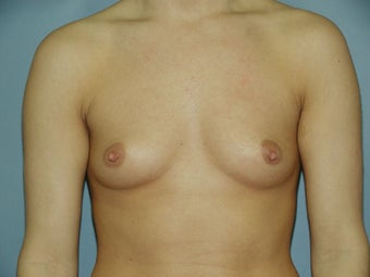 Breast Augmentation before 512169