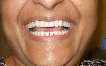 Cosmetic Dentistry Fixed Prosthesis after 254543