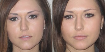 Non Surgical Lip Enhancement before 549889