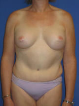 Male breast augmentation and tummy tuck after 106845