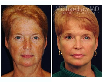 Facial Rejuvenation before 395152