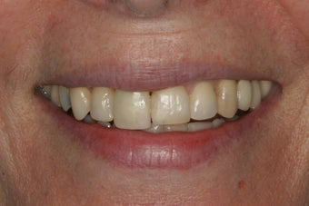 Porcelain Veneers before 213079