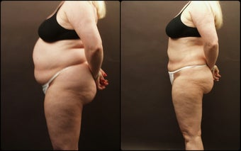 Liposuction  after 170451