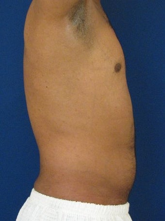 Vaser Hi Def Liposuction of the abdomen, chest, back, and flanks with fat injections to the pectoralis region 422699