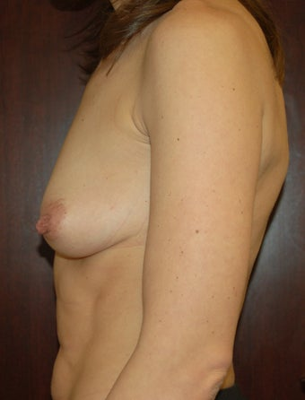 Breast augmentation - Submuscular and Inframammary incision before 301288