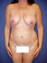 Tummy Tuck (Abdominoplasty), Breast Augmentation, Mommy Makeover before 394820