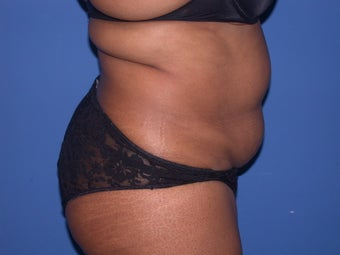 Liposuction on braline, flanks and abdomen before 197269