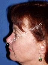 Eyelid Surgery (Blepharoplasty), Face Lift 636495
