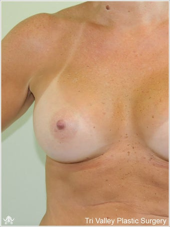 Breast Augmentation after 420888