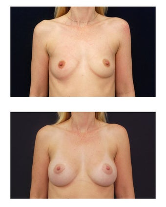 Breast Augmentation before 149591