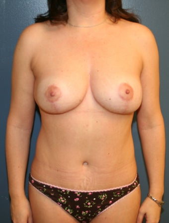 Mommy Makeover Breast lift and tummy tuck after 528659