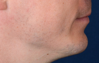 Chin Implant after 555167