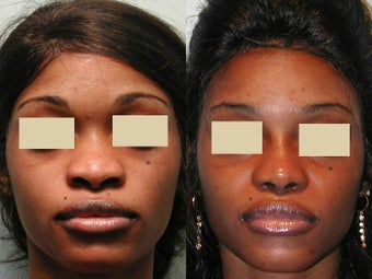 African American Rhinoplasty after 135818