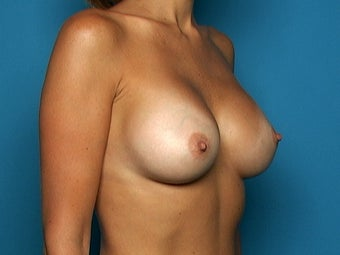 Breast Augmentation after 135229