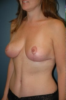 Tummy tuck and breast lift after 255702