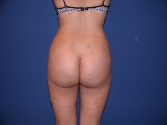 Liposuction on thighs, hips, buttocks after 197258