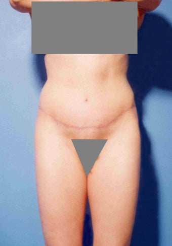Abdominoplasty after 356389