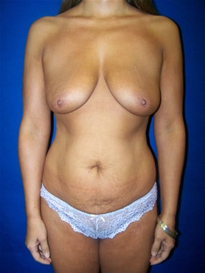 Tummy Tuck Surgery (abdominoplasty) and Breast Implants before 133927