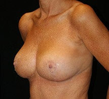 Breast Lift after 633757