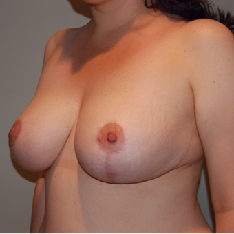 Vertical Breast Lift after 275503