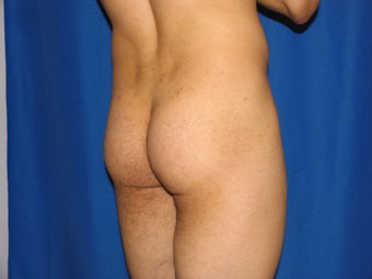 Buttocks Augmentation before 421480