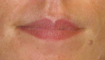 Juvederm Lip Augmentation before 84412