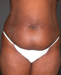 Tummy Tuck with Flank Liposuction before 330902