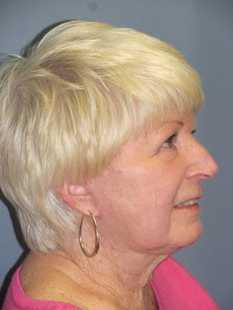 Neck Lift, Platysmaplasty 634731