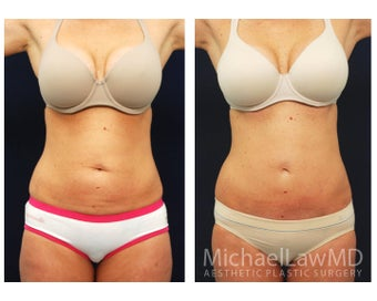 Abdominoplasty - Tummy Tuck before 396097