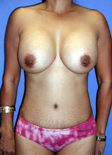 Tummy Tuck Surgery (Adominoplasty) and Augmentation after 122962