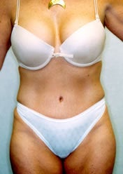 Tummy Tuck after 388163