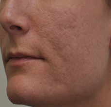 Acne Scarring 426028