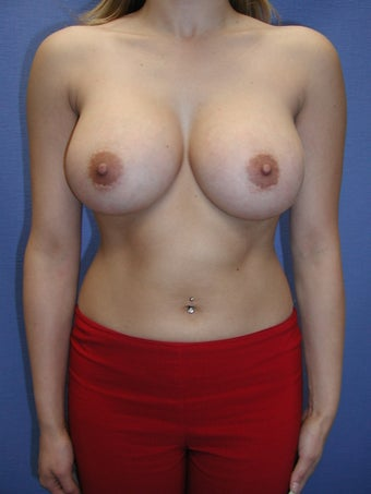 Breast Augmentation Surgery after 102272